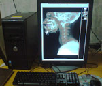 Advanced Barco Monitors for Radiology reporting